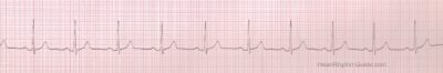Illustration of Normally An Adult Heartbeat?