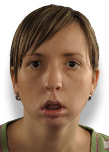 Illustration of How To Cope With One-sided Swollen Cheeks Because Of Perforated Teeth?