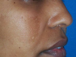 Illustration of Consultation Of Hydroquinone Drugs To Treat Hyperpigmentation Of The Skin?
