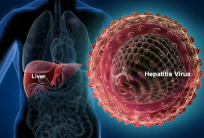 Illustration of Does The Hepatitis Virus Live If Exposed To Water?
