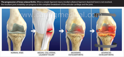 Illustration of The Knee Is Displaced And Results In Permanent Swelling, How To Deal With It?