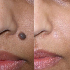 Illustration of Is It Dangerous To Remove A Mole Using A Laser On The Eyebrows?