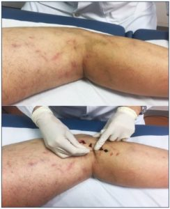 Illustration of The Sclerotherapy Injection Site Has Become Sores / Blister, Is It True Because The Blood Vessels Burst?