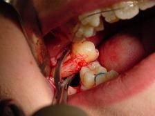Illustration of Is It True That Extracting Molars Will Cause Blindness And Brain Nerve Disorders?