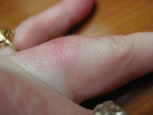 Illustration of Swelling On The Ring Finger Has Been A Week Due To The Habit Of Ringing A Finger, Is It Dangerous?