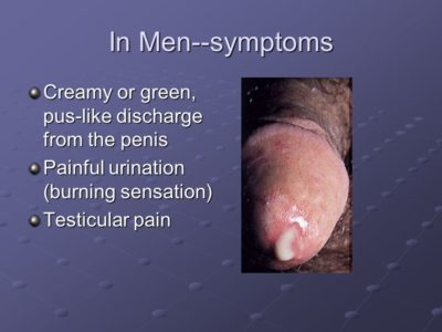 Illustration of Pus-like Discharge From The Testes?