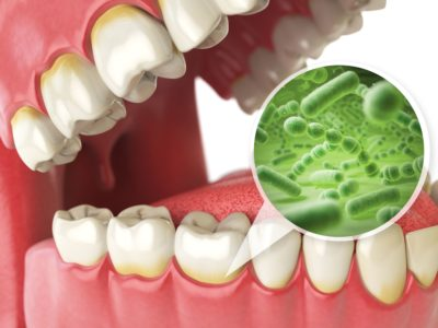 Illustration of How To Deal With Bad Breath After Impacted Dental Surgery?