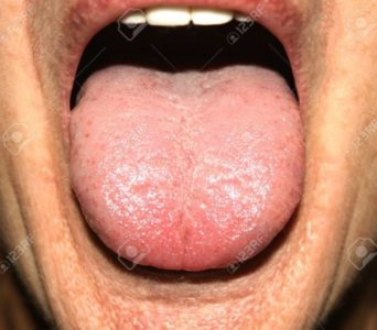 Illustration of The Cause Of Granules Such As Thrush In The Mouth?