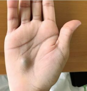 Illustration of Lump On The Left Hand Palm?
