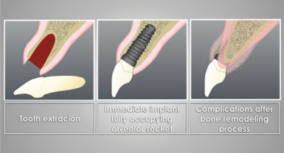 Illustration of Dental Implant Placement After The Tooth Was Removed 3 Years Ago?