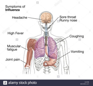 Illustration of Fever Is Accompanied By Joint Pain, Headache And Sore Throat?