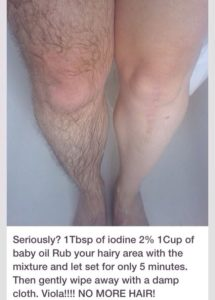 Illustration of How To Get Rid Of Hair On The Legs?