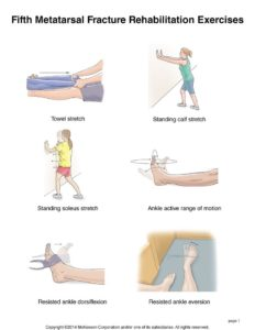 Illustration of Exercise After Leg Fracture Surgery?