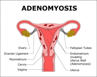 Illustration of Possible Complications Due To The Condition Of Adenomyosis In Pregnancy?