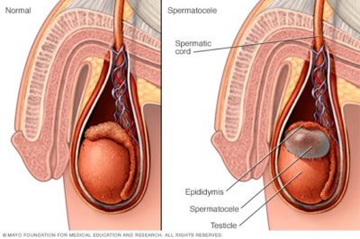 Illustration of Pain In The Testicles And Soft Lumps Appear Above The Left Testis?