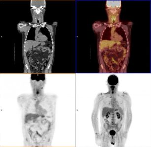 Illustration of Can PET Scan Replace Biopsy Measures?