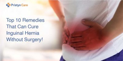 Illustration of Hernia Treatment Without Surgery?