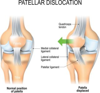 Illustration of How Long Is The Recovery Period For The Knee Dislocation?