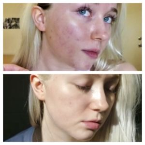 Illustration of Remove Acne Scars With Hydroquinone?
