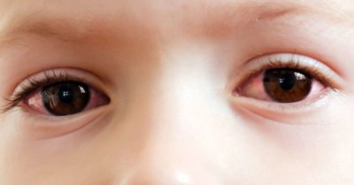 Illustration of Reddish, Swollen Eyes, Accompanied By Whitish Spots On Children Aged 2 Years?