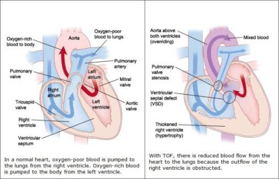 Illustration of Proper Handling Of Babies With Tetralogy Of Fallot (TOF)?