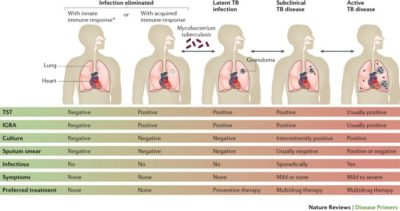 Illustration of Overcoming TB In Children Who Are Positive Even Without Symptoms?