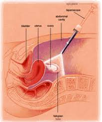 Illustration of Bleeding Continuously After The Hydrotubation Procedure?
