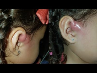 Illustration of Overcoming Preauricular Sinus In Infants?