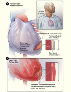 Illustration of How To Cure Heart Swelling Totally?