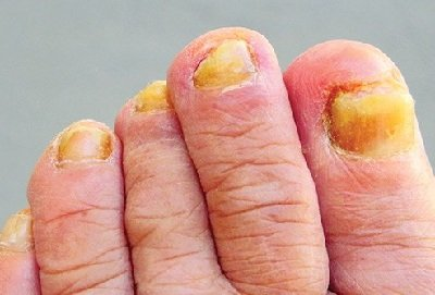 Illustration of Yellow Toenails Accompanied By Smelling Liquid?