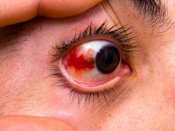 Illustration of Red Eye On The Outer Edge Due To Prolonged Contact Lenses?
