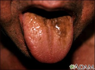 Illustration of Sprue Appears On The Tongue Accompanied By Pain In The Tooth Extraction Gums?