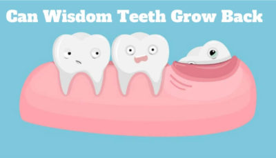 Illustration of It Is Possible That Molars Grow Back After They Come Off?
