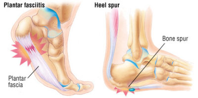 Illustration of Severe Pain In The Heel Of The Right And Left Foot?