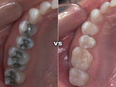 Illustration of The Thread Appears Visible In The Gums From The Wisdom Teeth Lift Surgery?