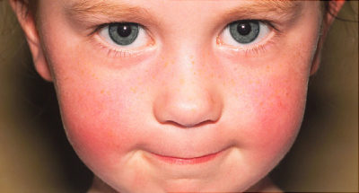 Illustration of Red Around The Child's Face Accompanied By Swelling?