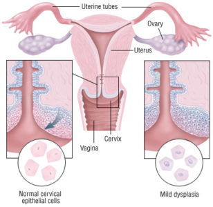 Illustration of Advanced Treatment After Cauter Therapy In The Cervix?