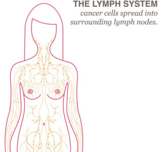 Illustration of Likelihood Of Developing Lymph Node Cancer If You Have A Family With A History Of Lymph Node Cancer?