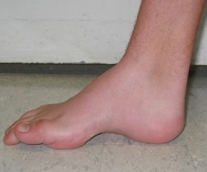 Illustration of Prominent Bone In The Child's Feet?