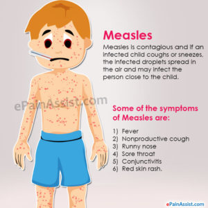 Illustration of What Is The Right Medicine For Measles?