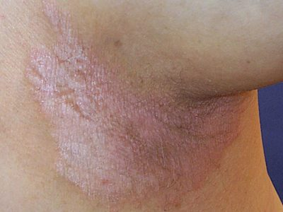 Illustration of Intimate Areas Of Itching And Peeling Skin?