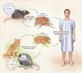 Illustration of Causes Of Seizures When You Have Typhus?