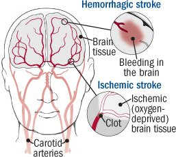 Illustration of Solution To Overcome Stroke Due To Accident?