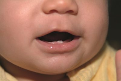 Illustration of Tooth Growth In Infants Aged 5 Months?