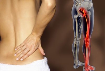 Illustration of Low Back Pain And Radiating To The Legs?
