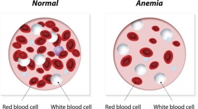Illustration of Causes Of Red Blood Cell Deficiency?