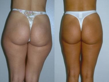 Illustration of How To Deal With External Injuries After Buttock Surgery?