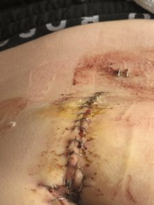 Illustration of Appears Like A Thread In Appendicitis Scar Even Though The Thread Has Been Removed?