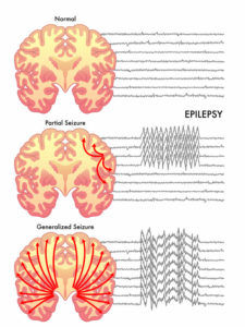 Illustration of The Natural Cause Of Seizures Is 5 Minutes?