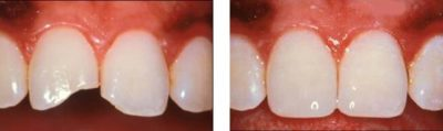Illustration of Endurance Of Dental Crowns With Composite Resin Material?